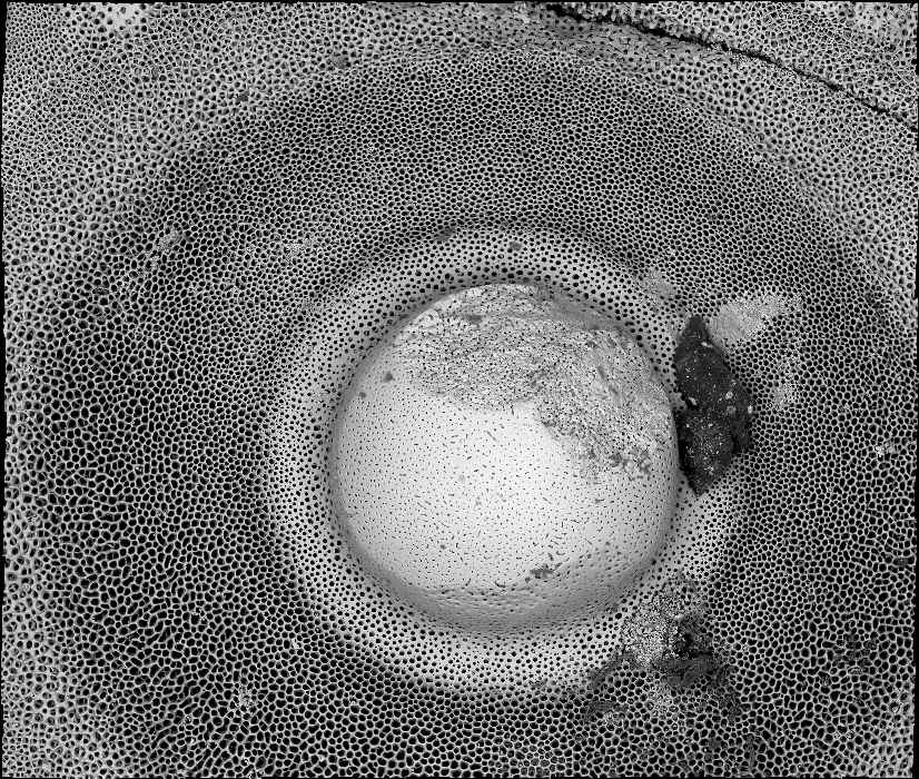 09_deepzoom_seaurchin_sem_overview_lr